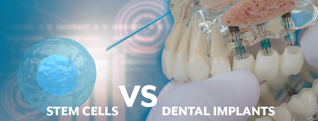 Why Titanium Implants are Better than Teeth Grown with Stem